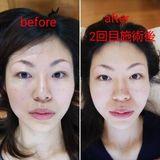 30代女性 美容鍼